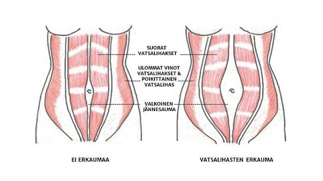 Erkaumassa suorien vatsalihasten välissä oleva valkoinen jännesauma on venynyt.